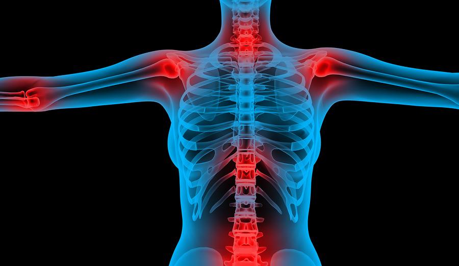 Kínzó térdfájdalmak | Diéta és Fitnesz